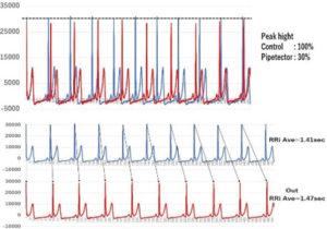 図3. NMRパイプテクターが心電図にもたらす変化