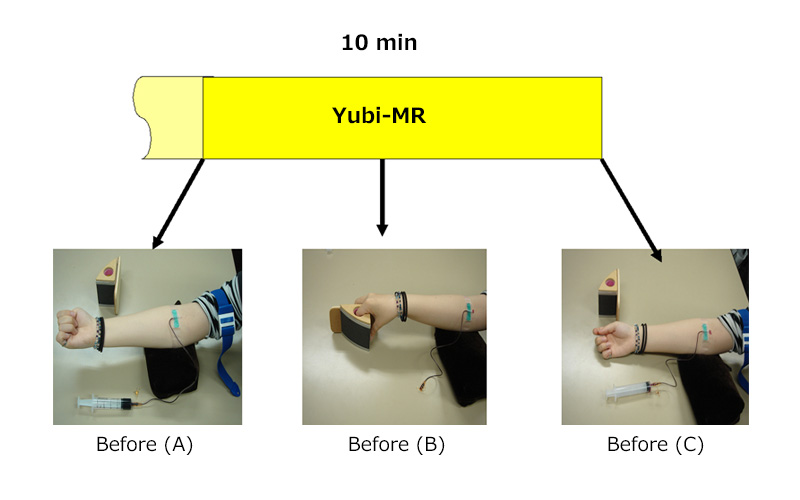 Figure2:Blood sampling from donor for dROM/BAP analysis